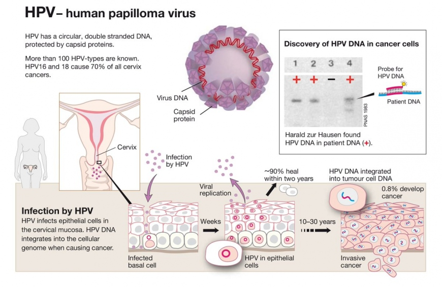 Virologist Harald zur Hausen discovered how cervical cancer is triggered by virus infections. His work led to the creation of the HPV vaccine which cuts the risk of developing cervical cancer.