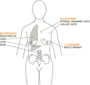 TNM-body-outline_transparent_0.png